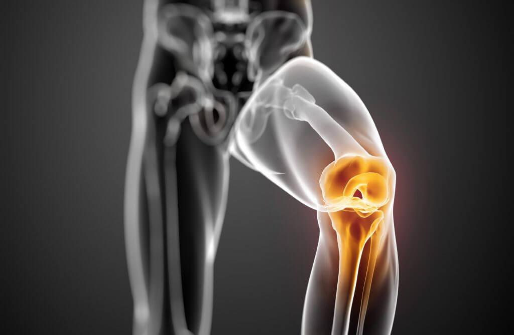 Профилактическая программа артроза суставов